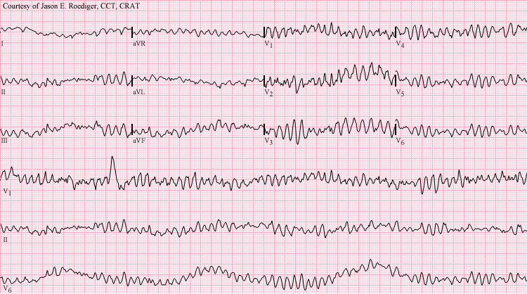 Erratic heart rhythm during sudden cardiac arrest.  Attribution: Jason E. Roediger, Creative Commons License