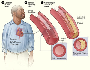 Atherosclerosis plaque.  Image attribution: Wikimedia Commons, Public Domain, N.I.H.